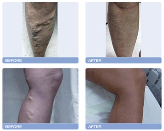 varicose vein treatment springfield mo